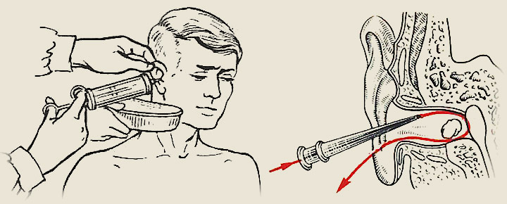 Как промыть ухо ребёнку в домашних условиях